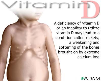 Vitamin D deficit: MedlinePlus Medical Encyclopedia Image