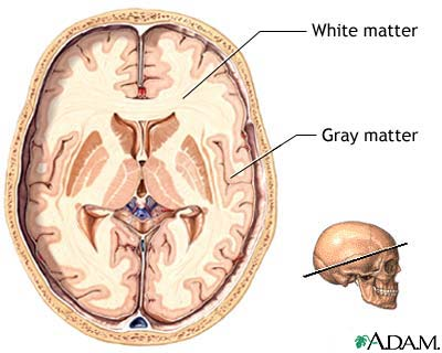 Gray And White Matter Of The Brain Medlineplus Medical Encyclopedia