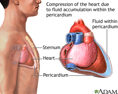 cardiac tamponade: medlineplus medical encyclopedia image, Skeleton