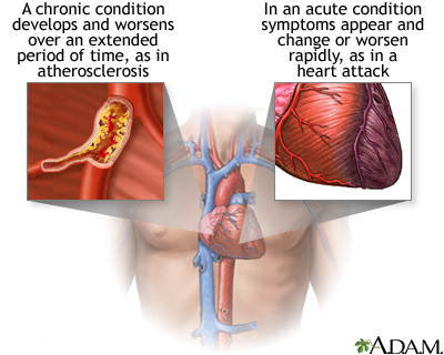 Acute Vs Chronic Conditions Medlineplus Medical Encyclopedia Image