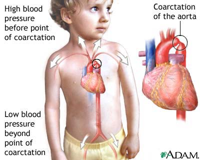 Coarctation of the aorta is a birth defect in which the aorta, the major artery from the heart, is narrowed. The narrowing results in high blood pressure before the point of coarctation and low blood pressure beyond the point of coarctation. Most commonly, coarctation is located so that there is high blood pressure in the upper body and arms and low blood pressure in the lower body and legs. Symptoms can include localized hypertension, cold feet or legs, decreased exercise performance, and heart failure.