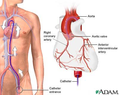 Coronary Angiography Medlineplus Medical Encyclopedia