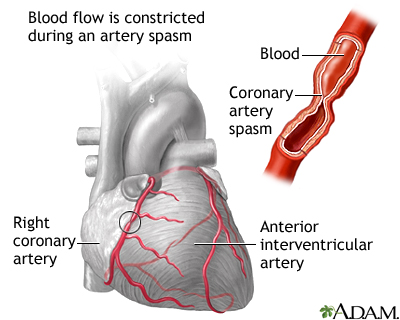 Coronary artery spasm is a temporary constriction of an artery in the heart. The spasm can slow or stop blood flow through the artery. The main symptom experienced is chest pain.