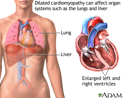 Dilated cardiomyopathy involves enlargement of the heart muscle and is the most common type of cardiomyopathy. The heart muscle is weakened and cannot pump blood efficiently. Decreased heart function affects the lungs, liver, and other body systems.