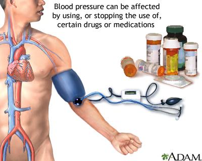 أهم أعراض وأسباب إرتفاع ضغط الدم 18137