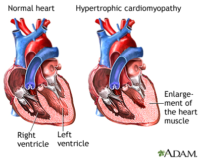 Hypertrophic cardiomyopathy is the thickening of the muscles that make up the heart. The thickening may interfere with the normal functioning of the heart by narrowing the outflow of the ventricle; reducing the ability of the heart to relax and fill with blood during the relaxation phase; or reducing the ability of the valves of the heart to function properly. Any situation that increases the contraction or rate of contraction of the heart muscle can worsen these symptoms.
