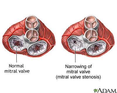 Mitral stenosis is a heart valve disorder that narrows or obstructs the mitral valve opening. Narrowing of the mitral valve prevents the valve from opening properly and obstructs the blood flow from the left atrium to the left ventricle. This can reduce the amount of blood that flows forward to the body. The main risk factor for mitral stenosis is a history of rheumatic fever but it may also be triggered by pregnancy or other stress on the body such as a respiratory infection, endocarditis, and other cardiac disorders.