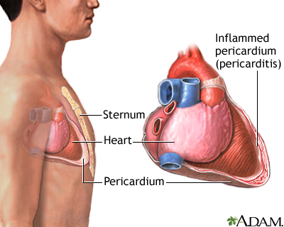 Pericarditis is a disorder caused by inflammation of the pericardium, the sac-like covering of the heart. Pericarditis can be caused by bacterial, fungal, or viral infections. It may also be a result of injury or trauma to the chest, esophagus, or heart. Pain occurs as a result of the inflamed pericardium rubbing against the heart.