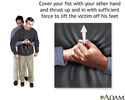Heimlich maneuver on an adult