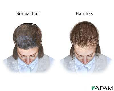 Male Pattern Baldness Treatment Naturally