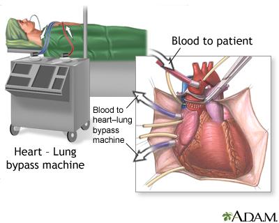 Heart valve surgery seriesprocedure part 1 medlineplus medical overview heart valve surgery is open heart ccuart Images