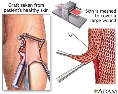 Facial allograft transplantation