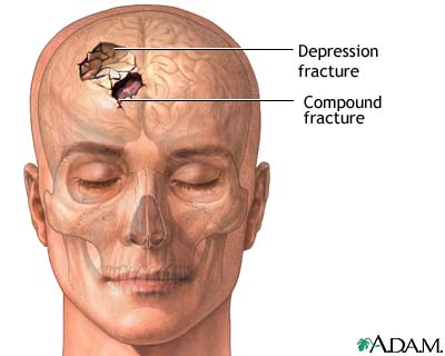 Skull fracture: MedlinePlus Medical Encyclopedia Image