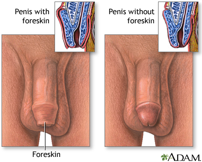 Penis - with and without foreskin