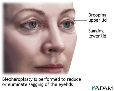 Blepharoplasty - series