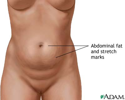Abdominoplasty - series