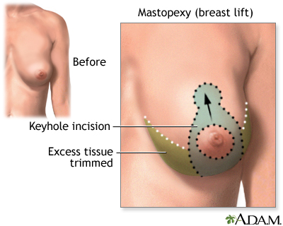 breast lift mastopexy is usually performed for drooping breasts which ...