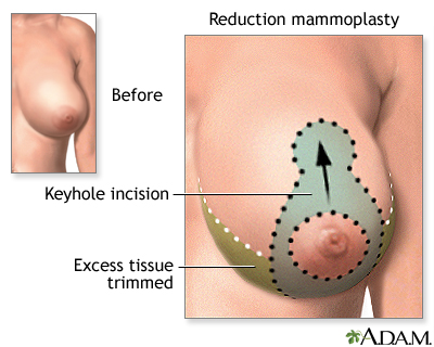 Breast Reduction Mammoplasty Series Incisions Medlineplus