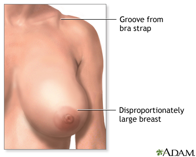 Breast reduction (mammoplasty) - series - Indications