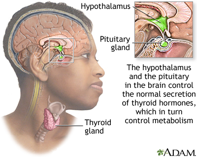 the thyroid's production is normally regulated by the brain (Hyothalamus and Pituitary gland). But they are being over-ridden