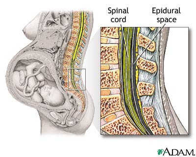 epidural block - pregnancy: medlineplus medical encyclopedia