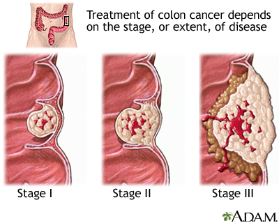 Stages of cancer: MedlinePlus Medical Encyclopedia Image