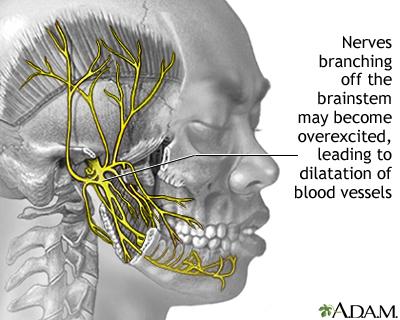 why migraine headache occurs