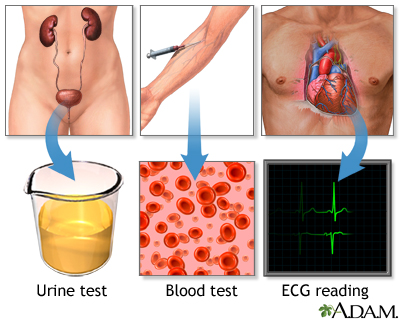 High blood pressure tests: MedlinePlus Medical Encyclopedia Image
