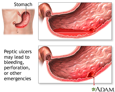 peptic ulcer: medlineplus medical encyclopedia, Skeleton