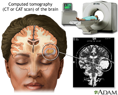 ct scan of the brain medlineplus medical encyclopedia image