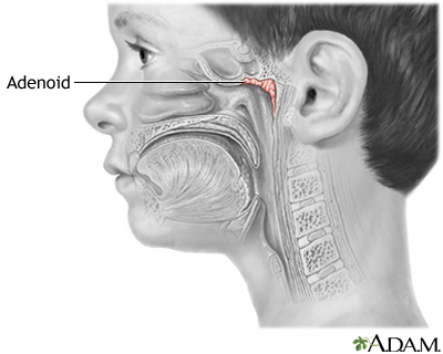 And in Tonsil adenoid adults problems