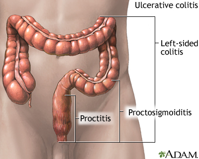 Ulcerative colitis: MedlinePlus Medical Encyclopedia Image