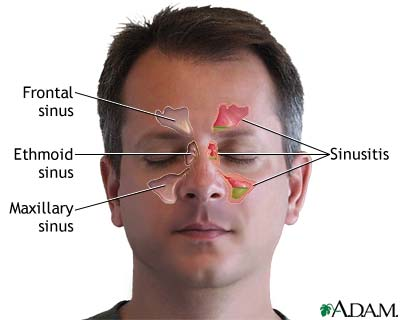Sinus and facial pain