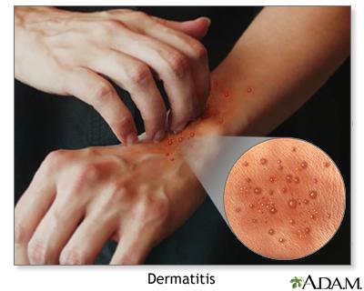 dermatitis on top of hands - photo #43