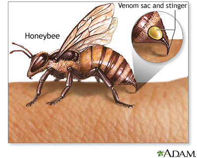 Insect stings and allergy: MedlinePlus Medical Encyclopedia Image