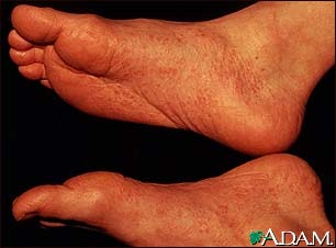 Reactive arthritis - view of the feet