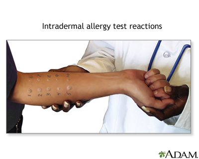 Skin Test | About Allergy Test | ACAAI Public Website
