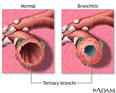 Bronchitis and normal condition in tertiary bronchus: MedlinePlus ...