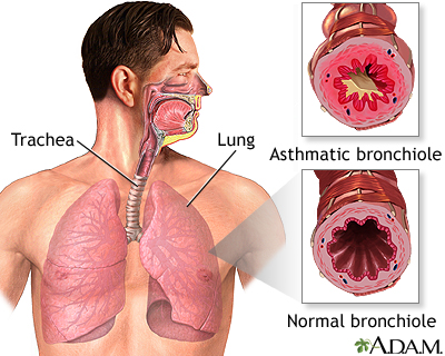 Asthmatic bronchiole and normal bronchiole: MedlinePlus Medical ...