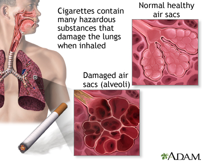 Smoking and COPD (chronic obstructive pulmonary disorder)