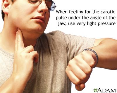 Tomar el pulso carotídeo