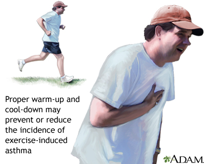 Exercise-induced asthma: MedlinePlus Medical Encyclopedia Image
