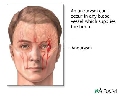 Cerebral aneurysm: MedlinePlus Medical Encyclopedia Image