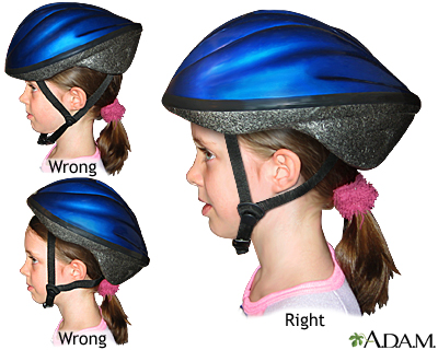 bicycle helmet proper usage medlineplus medical encyclopedia image