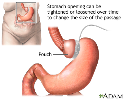 Adjustable gastric banding: MedlinePlus Medical Encyclopedia Image
