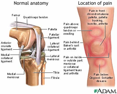 Knee pain: MedlinePlus Medical Encyclopedia Image on knee injuries, knee schematic, knee articular cartilage, medial collateral ligament, knee brace patellar tendon strap, knee cap popped out of place, knee bones, knee arthritis symptoms, medial meniscus, knee and leg tendons, sacroiliac joint, knee pain, posterior cruciate ligament, hinge joint, knee patella, knee drawing, knee exercises, anterior cruciate ligament injury, knee high heels, knee biology, knee osteoarthritis, knee flexion and extension, synovial joint, knee bursa, knee model, knee movements, knee arthroscopy, knee structure, knee outline, anterior cruciate ligament,