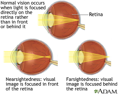 Normal, nearsightedness, and farsightedness