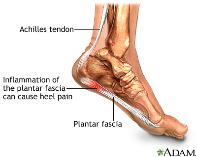 plantar fasciitis: medlineplus medical encyclopedia image, Skeleton