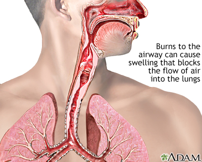Airway burn