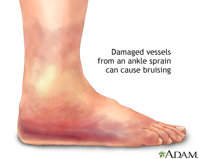 Ankle sprain swelling: MedlinePlus Medical Encyclopedia Image